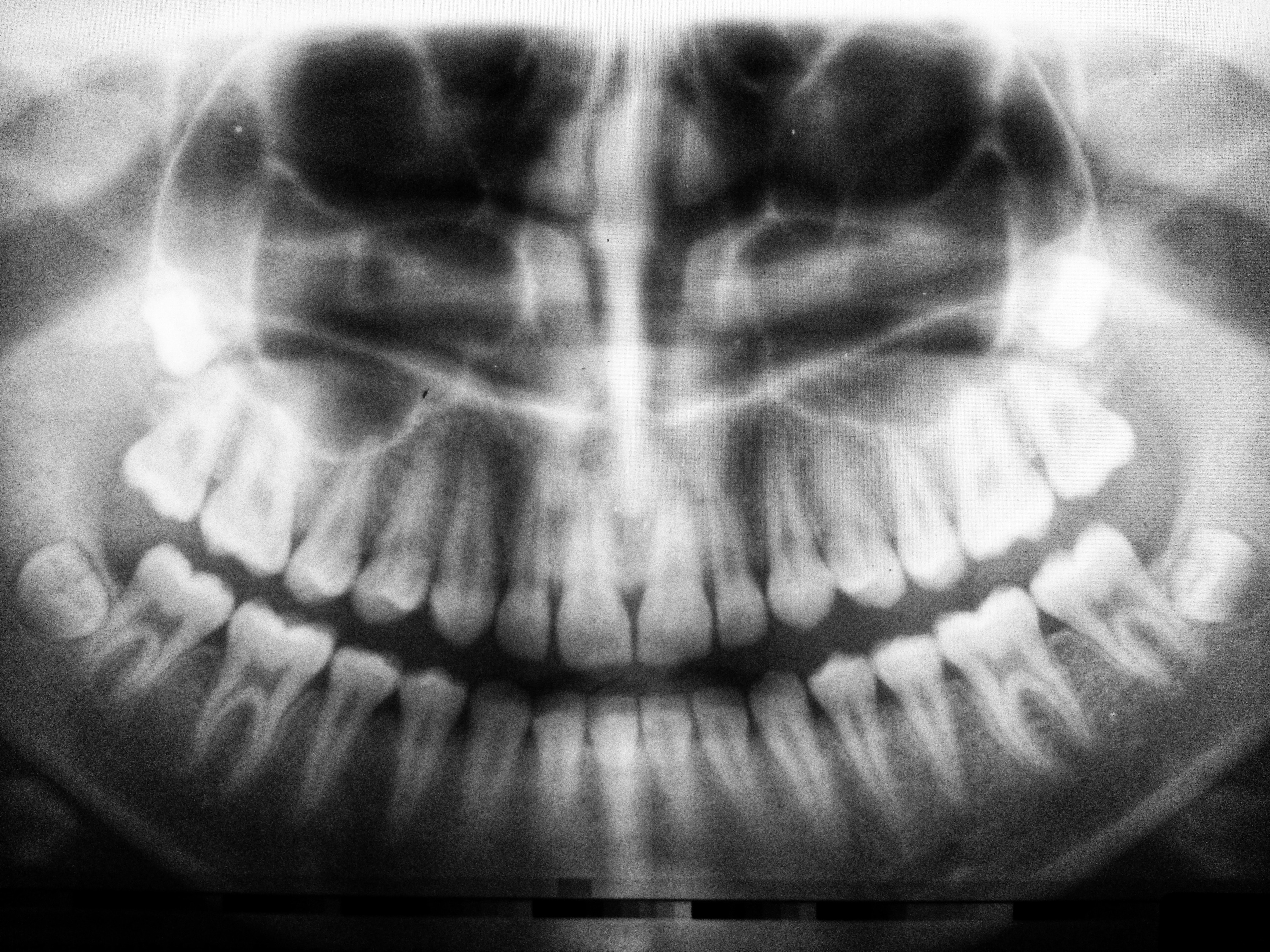 Difficult dental treatments